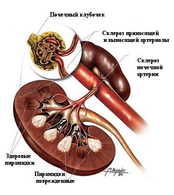 схема заболевание почки