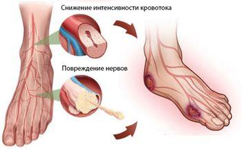 симптомы гангрены