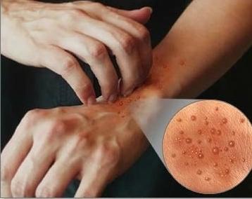 кожный зуд