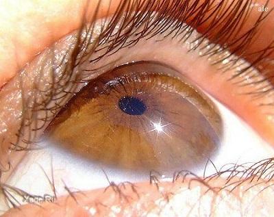 ангиопатия сетчатки глаза что это такое за болезнь