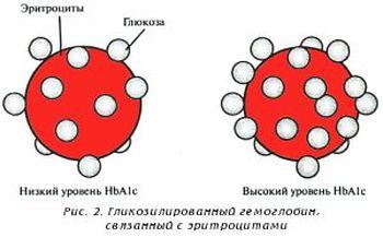 гемоглобин при диабете