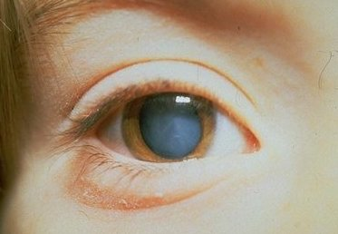 болезнь глаз катаракта