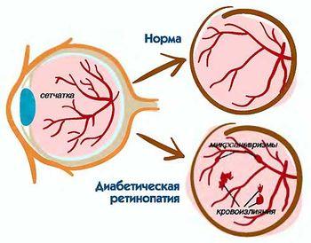 ретинопатия при диабете