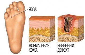 симптомы и диагноз