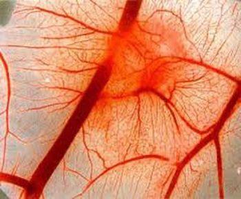 глазное поражение при диабете