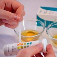 Тест на сахар в моче