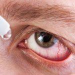 Какие капли используют для профилактики и лечения глаз у диабетиков