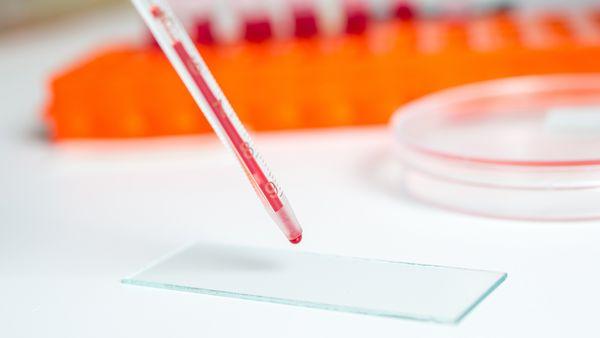 Анализ крови на инсулин