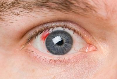 пятно в центре поля зрения