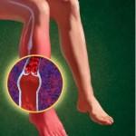 Как появляется и чем лечится ангиопатия при диабете?