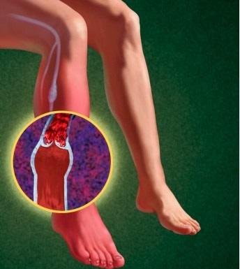 боли и судороги в стопе при диабете