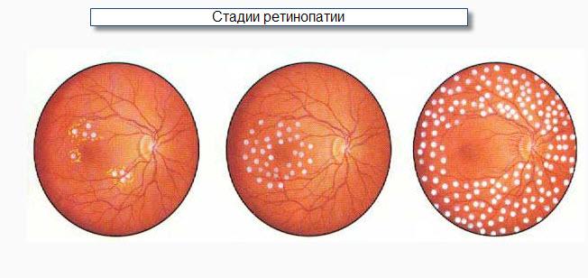 юолезнь глаз ренопатия