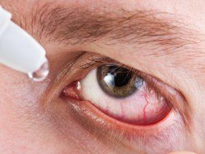 Глаукома при сахарном диабете лечение
