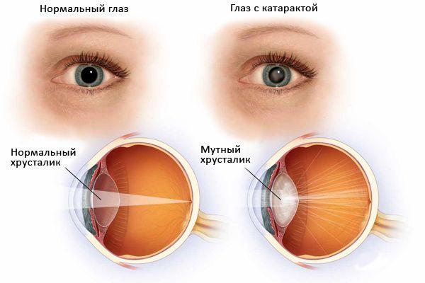 Нужно ли делать операцию на глаза для удаления катаракты при сахарном диабете