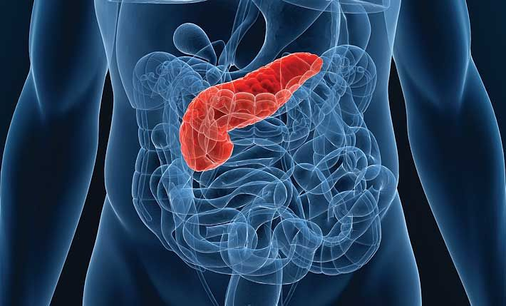 Признаки, лечение и особенности питания при панкреатическом диабете